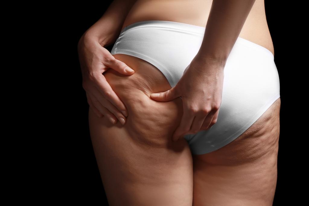 Immagine cellulite