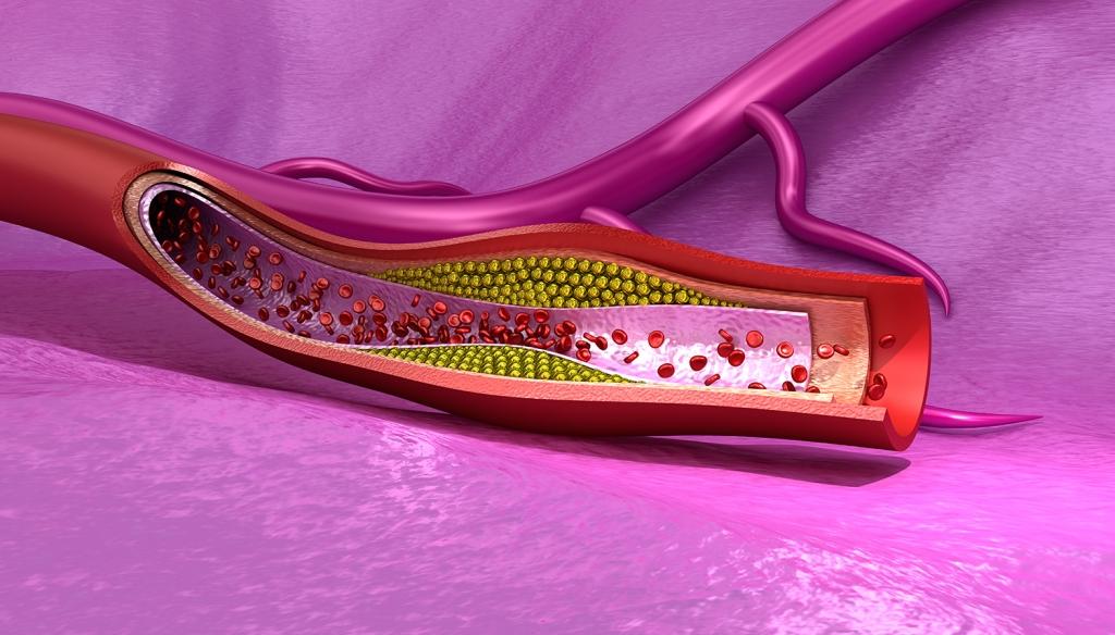 Immagine colesterolo