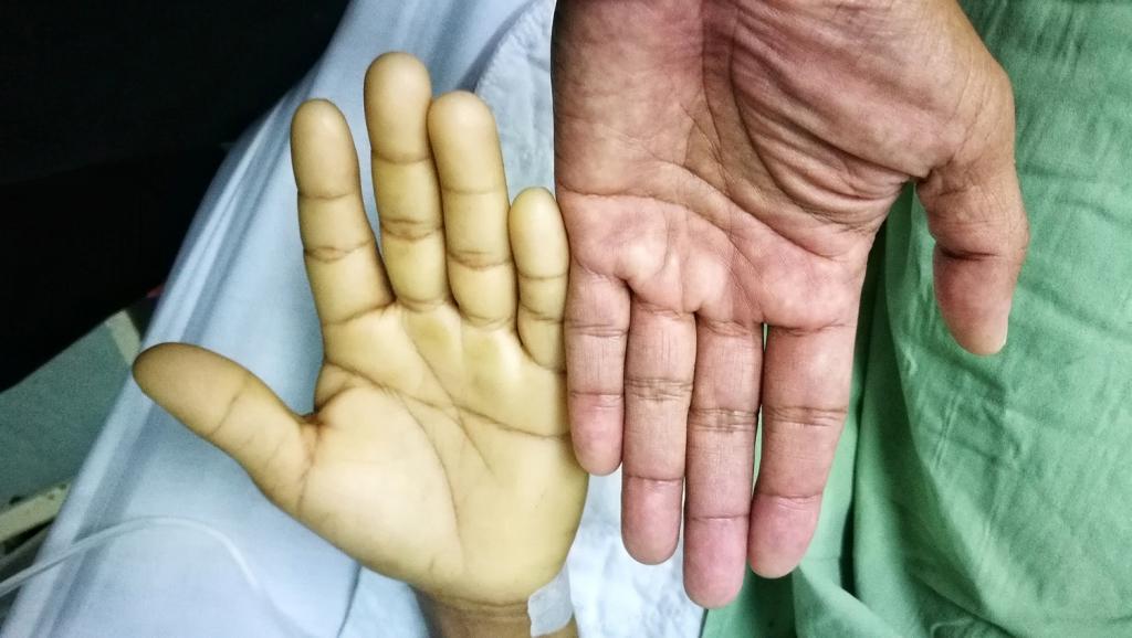 cure e rimedi per l'anemia