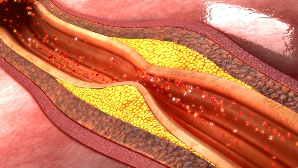 Cure e rimedi per l'arteriosclerosi