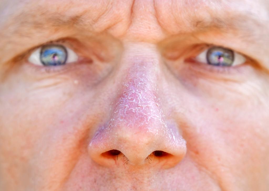Rimedi per la dermatosi squamosa
