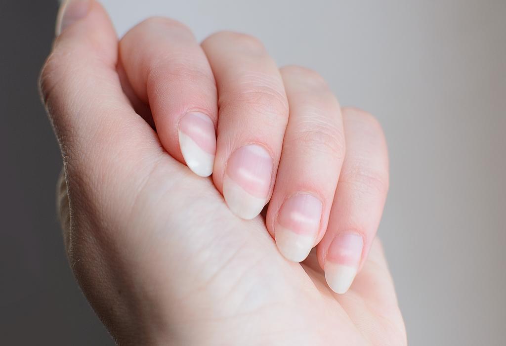 Rimedi per le unghie